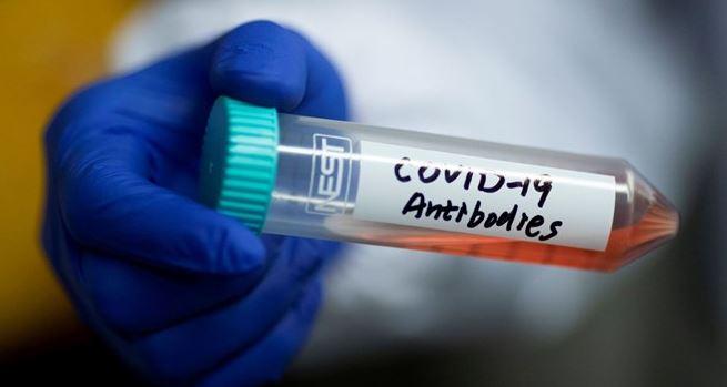 Türkiye'de 150 bin kişiye bağışıklı testi yapılacak! Elisa Testi nedir?