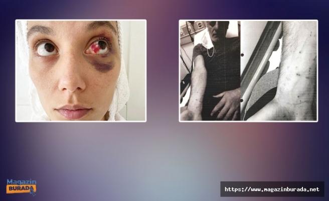 İlk Tanık İfadesini Verdi: 'Göğsüne Kadar Yoğun Kan Gördüm'