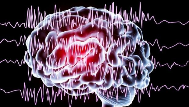 Epilepsi nöbeti önceden bilinecek!